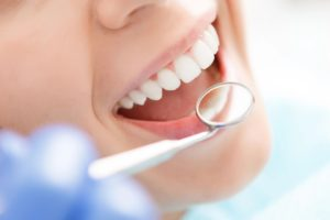 Healthy Mouth Standard-Bethesda-DDS